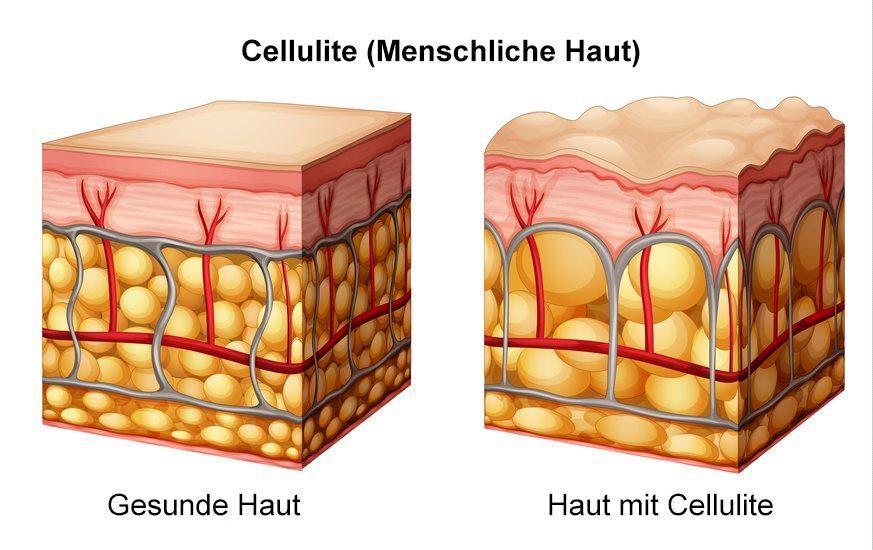 Massagegeräte im Kampf gegen Cellulite. (Bild: blueringmedia / Fotolia.com)