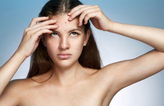Die richtige Nahrung für ein gleichmässiges Hautbild (Bild: © Studio 52 - shutterstock.com)